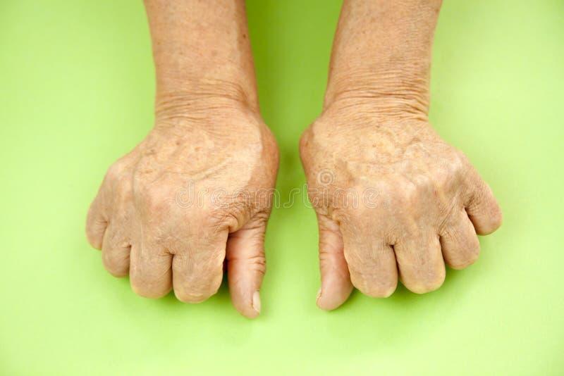 Mão da mulher deformada da artrite reumatoide fotografia de stock