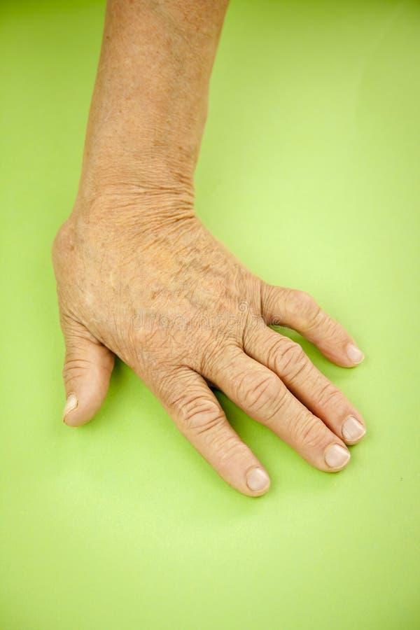 Mão da mulher deformada da artrite reumatoide foto de stock royalty free