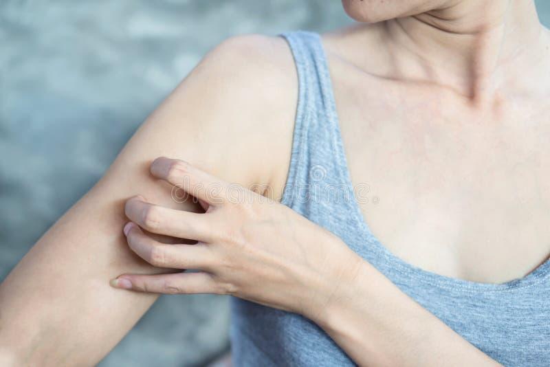 Mão da mulher que risca sua pele do braço sarnento devido à alergia fotografia de stock royalty free