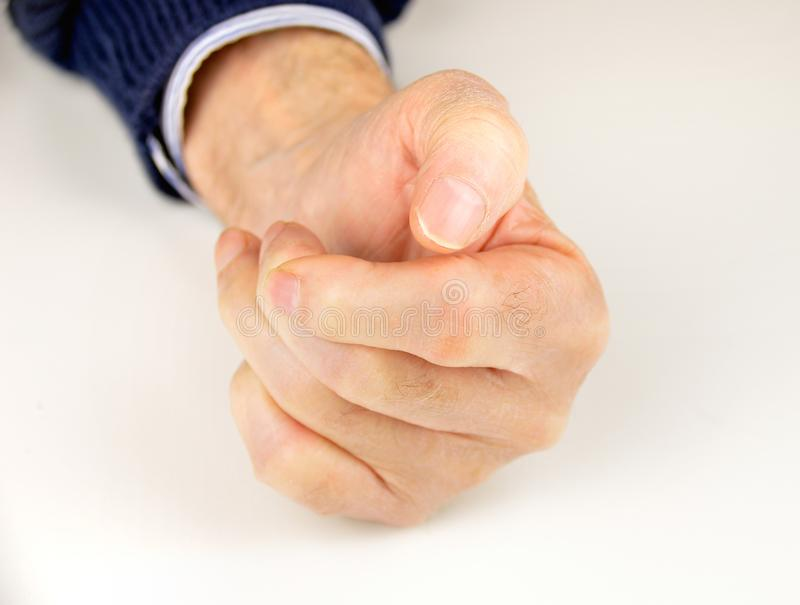 Mão deformada da artrite reumatoide fotos de stock royalty free