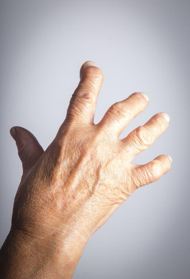 Mão deformada da artrite reumatoide fotografia de stock royalty free