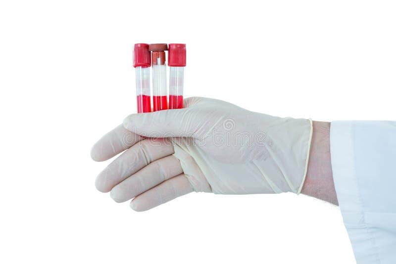 Mão do doutor que veste as luvas médicas que guardam os tubos de ensaio foto de stock
