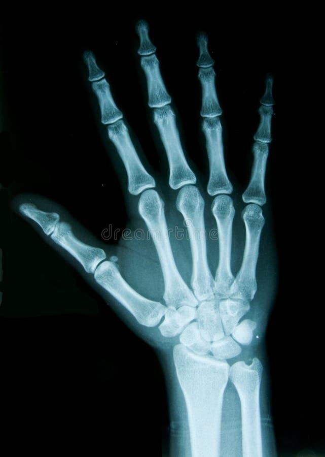 Mão do raio X imagem de stock