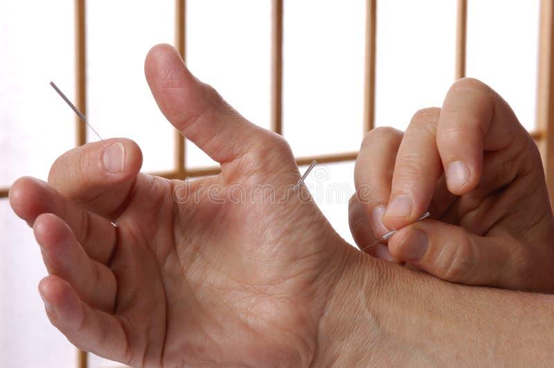Mão e dedos da acupuntura imagens de stock