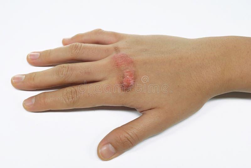 Mão escaldada da mulher com ferimento pela queimadura da água a ferver fotografia de stock
