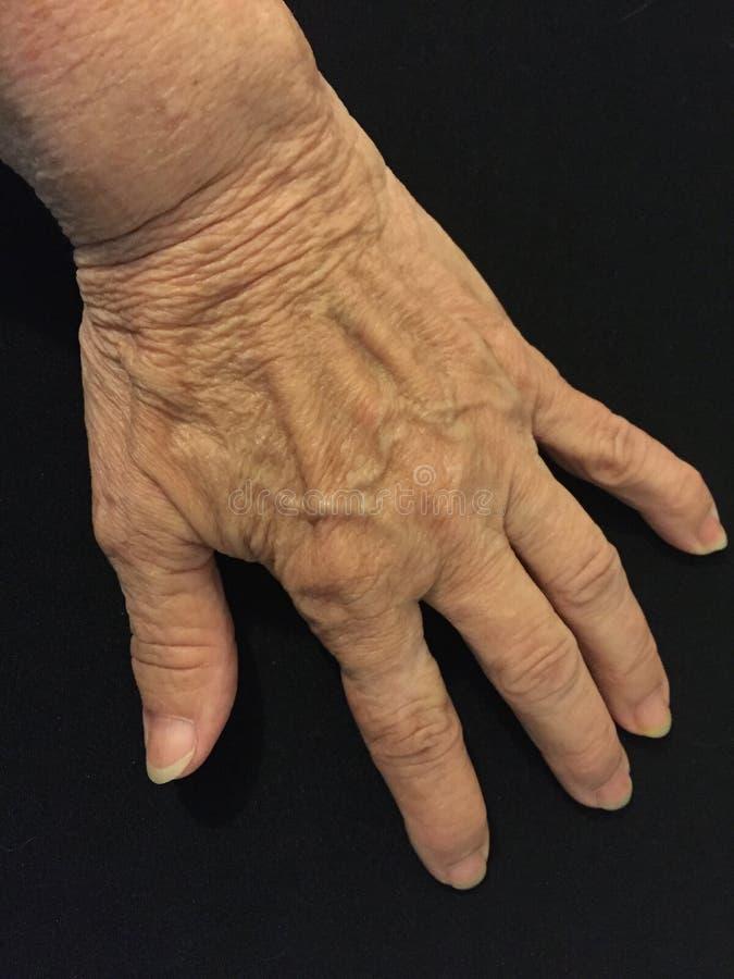 Mão esquerda desencapada idosa do ` s da mulher fotografia de stock