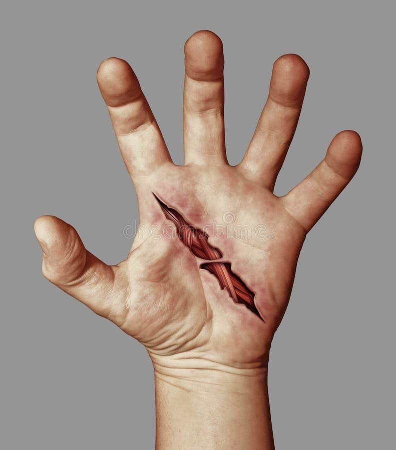 Mão ferida fotografia de stock