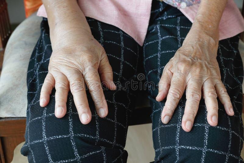 Mão inchada idosa ou mão do edema foto de stock