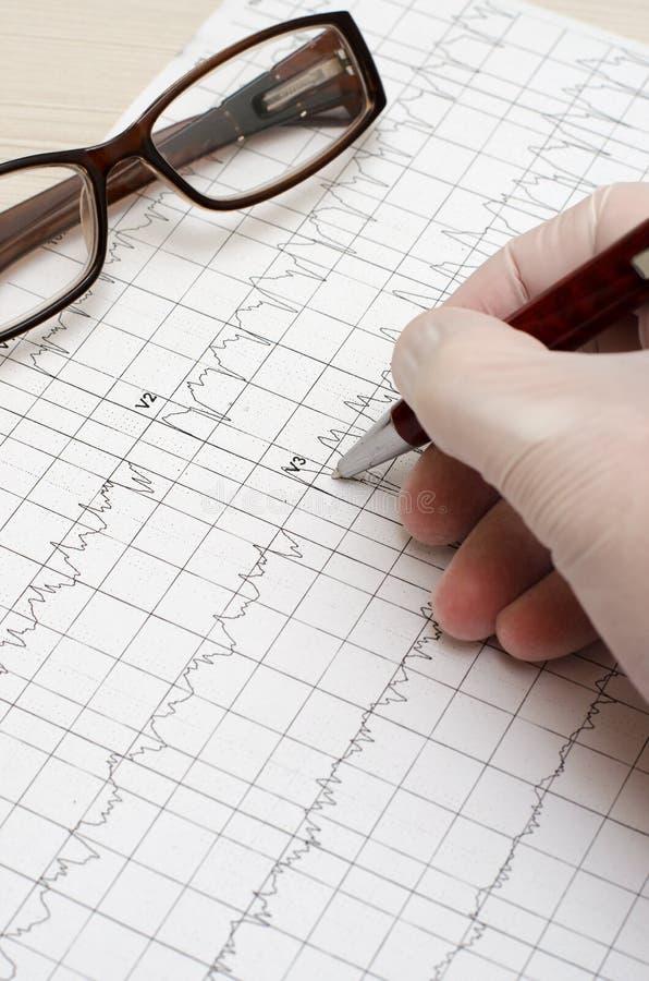 Mão na luva médica que guarda uma pena de esferográfica electrocardiogram fotos de stock royalty free