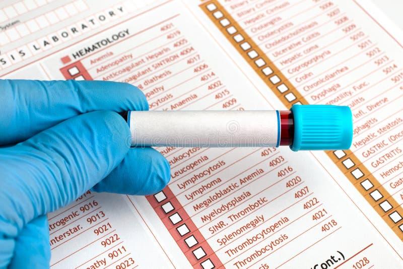 Mão que guarda análises de sangue sobre o relatório médico imagem de stock royalty free