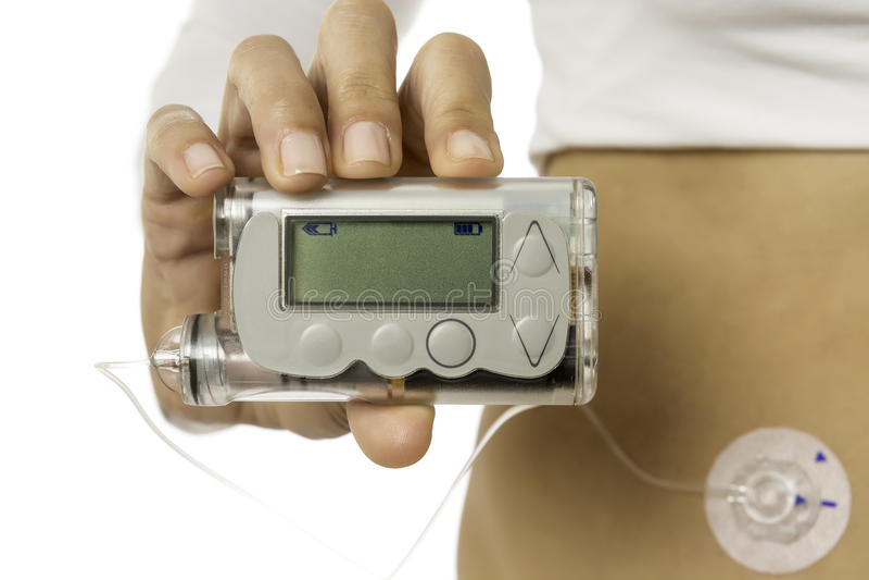 Mão que guarda uma bomba do insuline fotos de stock royalty free