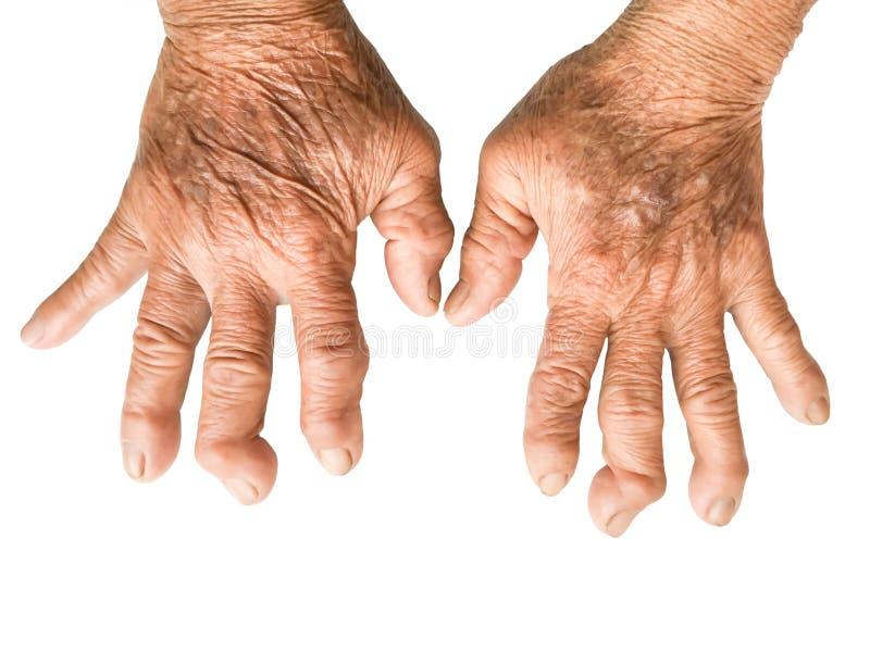 Mãos do paciente da artrite reumatoide isoladas no branco imagem de stock royalty free