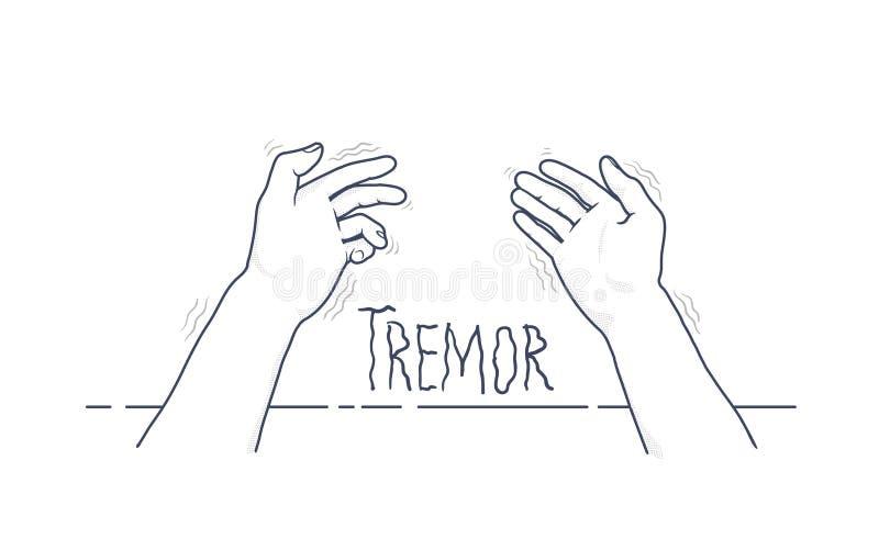 Mãos do tremor Ideia de primeira pessoa de agitar as mãos Sintoma da doença do ` s de Parkinson Ilustração médica do vetor ilustração royalty free