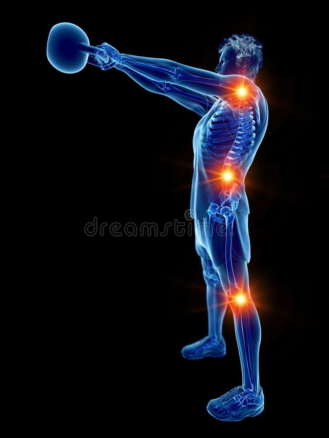 Mężczyzna robi kettlebell treningowi - boleśni złącza ilustracji