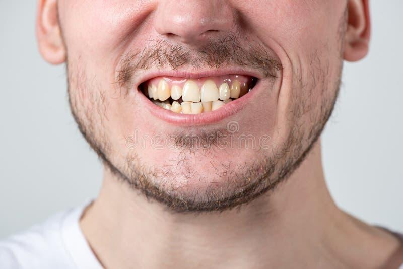 Mężczyzna z jeży się i otwarty usta z nierównymi zębami zdjęcie royalty free