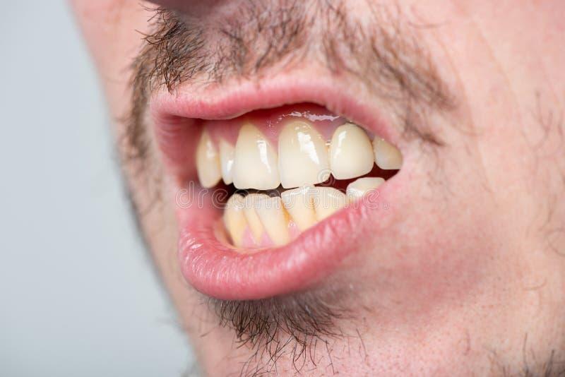Mężczyzna z jeży się i otwarty usta z nierównymi zębami obraz royalty free