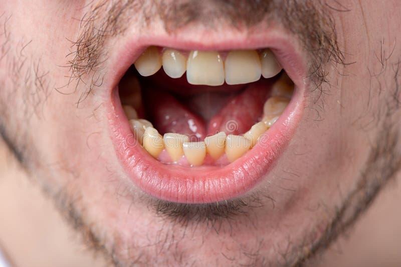 Mężczyzna z jeży się i otwarty usta z nierównymi zębami obrazy royalty free
