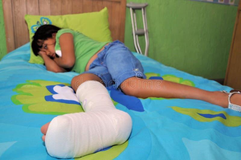 Mädchen mit dem gebrochenen Fahrwerkbein lizenzfreies stockfoto