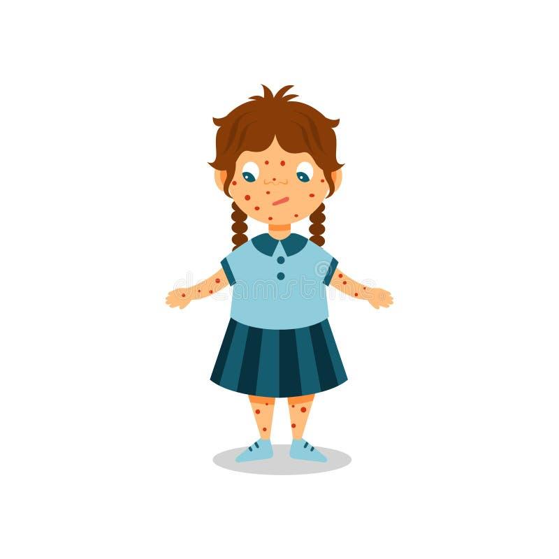 Mädchen mit Hautausschlag auf ihrem Körper und Gesicht, Kind mit Symptomen von Windpockenvektor Illustration auf einem weißen Hin stock abbildung