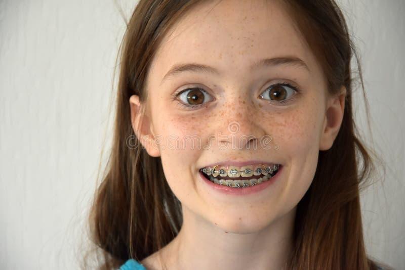 Mädchen mit zahnmedizinischen Klammern lizenzfreie stockfotos