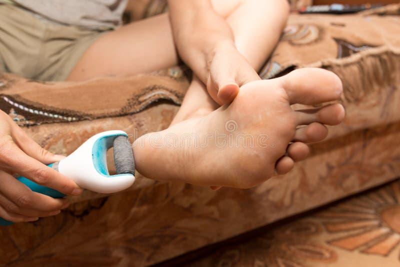 Mädchen säubert die Ferse auf dem Fuß stockfoto