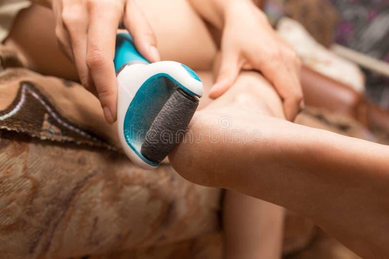 Mädchen säubert die Ferse auf dem Fuß stockbilder