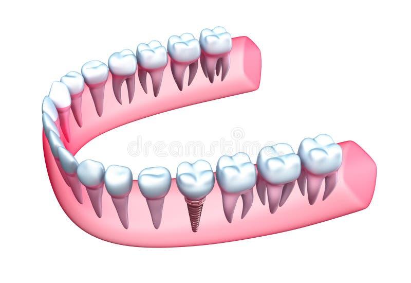 Människakäken modellerar med tänder och implantatet. stock illustrationer