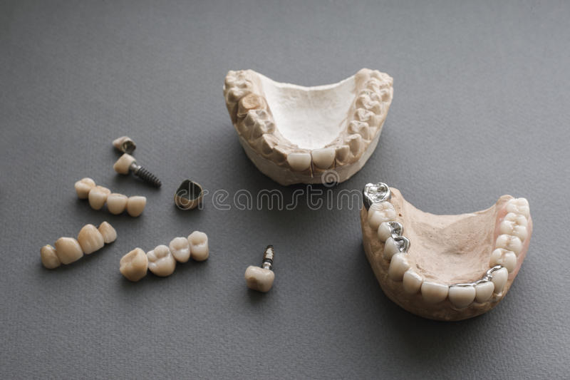 Människan snackar, tand- implantat, och kronor sänker lekmanna- arkivfoton