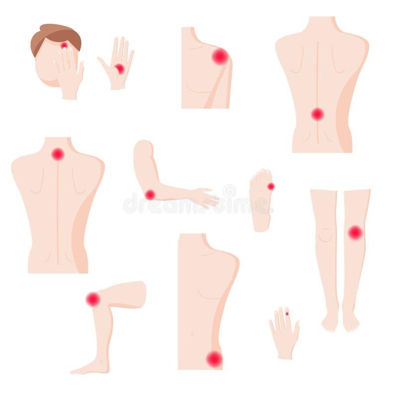 Människokroppdelar med smärtar zoner, plan isolerad illustration för vektor royaltyfri illustrationer