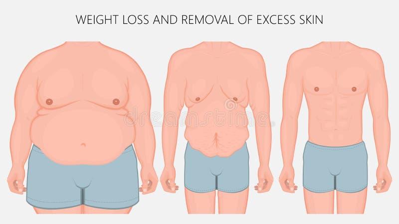 Människokroppproblem_Weightförlust och borttagning av den överskott hudframdelen royaltyfri illustrationer