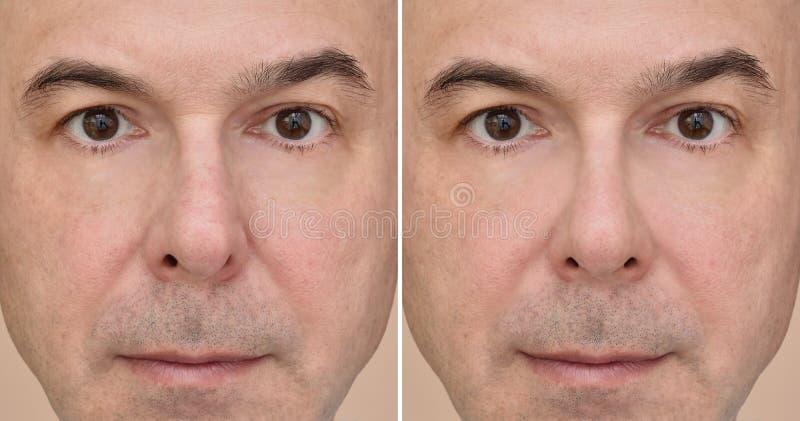 Männliche Nase vor und nach plastischer Chirurgie stockfoto