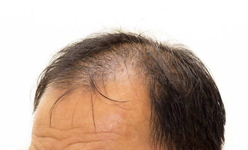 Männlicher Kopf mit Vorderseite der Haarausfallsymptome stockfotos