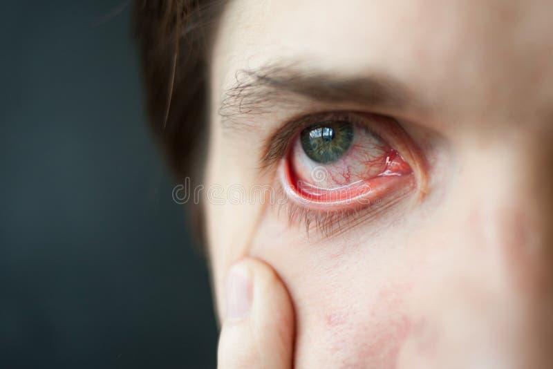 Mäns röd ögonnärbild, trötthet, problem med blodkärl royaltyfri fotografi