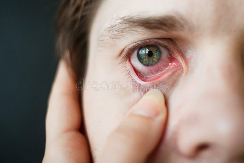 Mäns röd ögonnärbild, trötthet, problem med blodkärl fotografering för bildbyråer