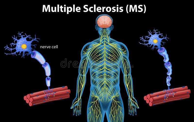 Mänsklig anatomi av multipel sklero vektor illustrationer