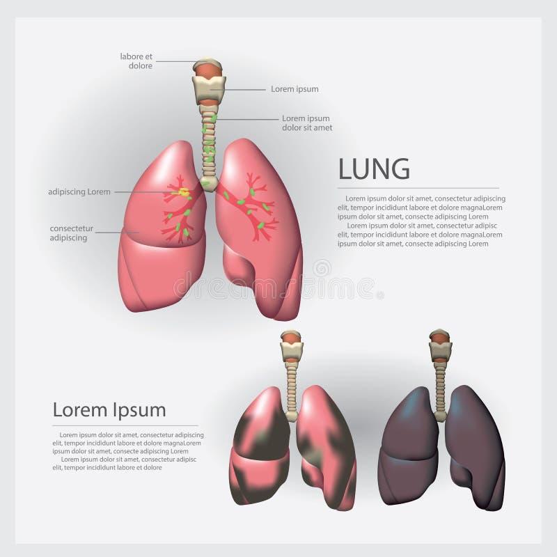 Mänsklig anatomilunga med detaljen och Lung Cancer royaltyfri illustrationer