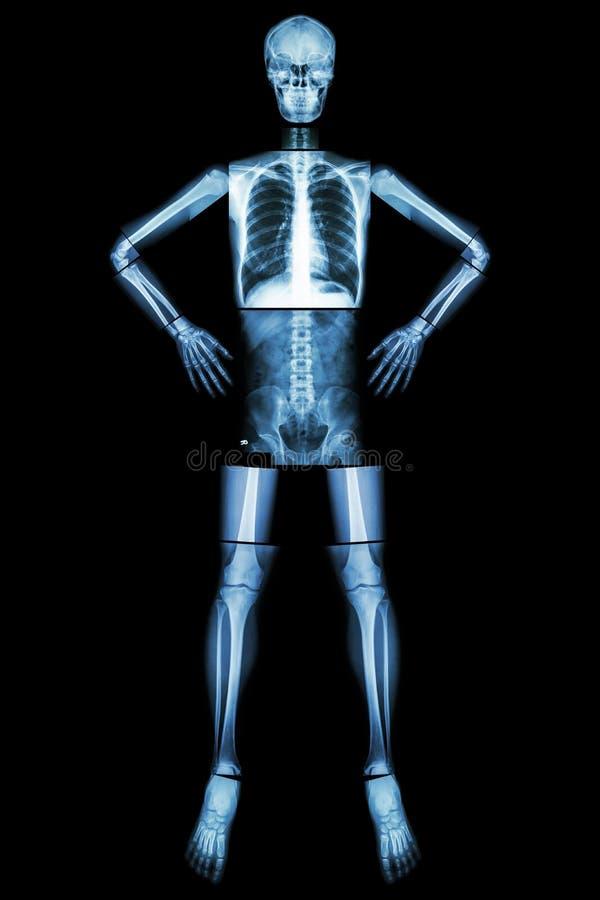 Mänsklig benställning och akimbo (den hela kroppen för röntgenstrålen: head bröstkorg för bröstkorg för finger för hand för handl royaltyfri bild