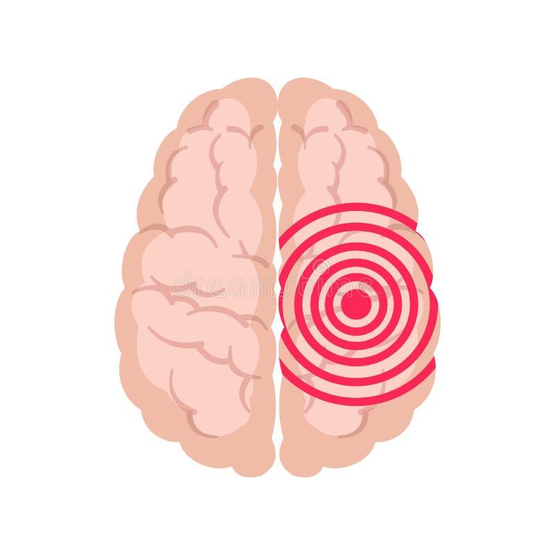 Mänsklig hjärna med epilepsiaktivitet som isoleras på vit bakgrund stock illustrationer
