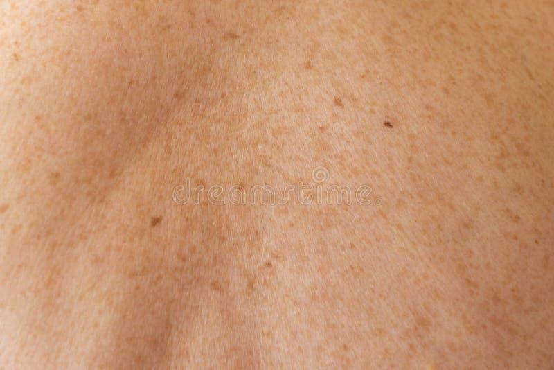 Mänsklig hud som täckas med freckestextur royaltyfria foton