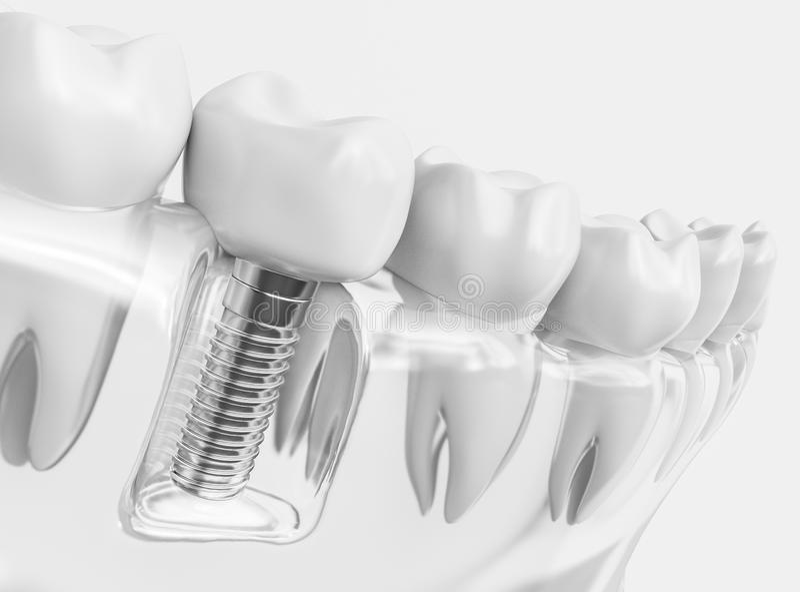 Mänsklig implantat för tand - tolkning 3d royaltyfri fotografi