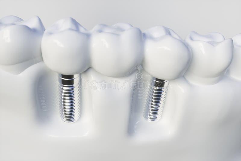 Mänsklig implantat för tand - tolkning 3d stock illustrationer