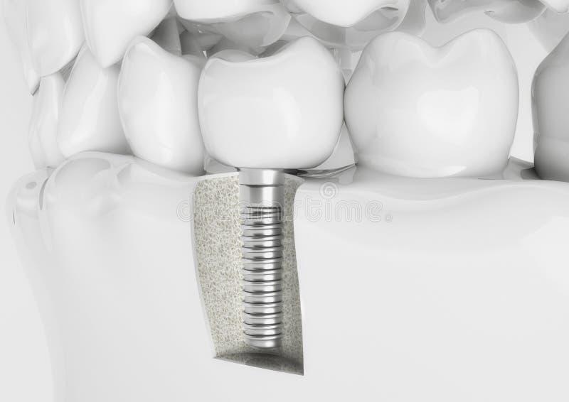 Mänsklig implantat för tand - tolkning 3d arkivbild