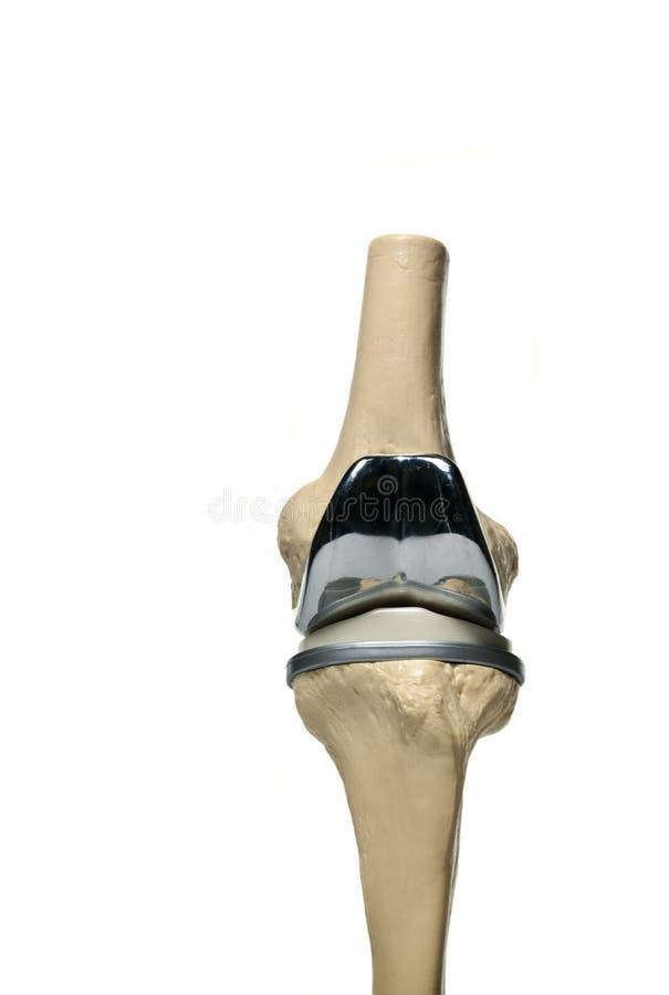 Mänsklig knärepacement royaltyfri bild