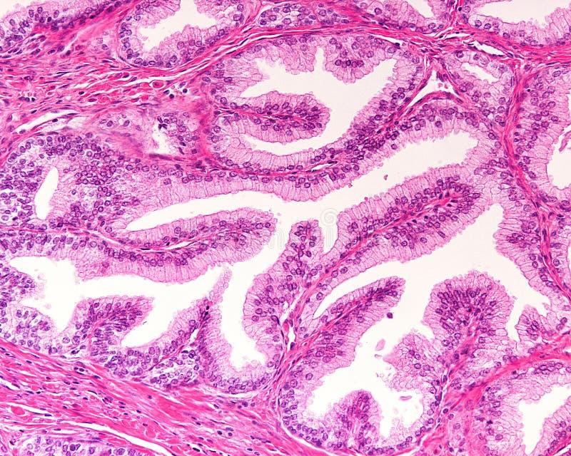 mänsklig prostata royaltyfria foton