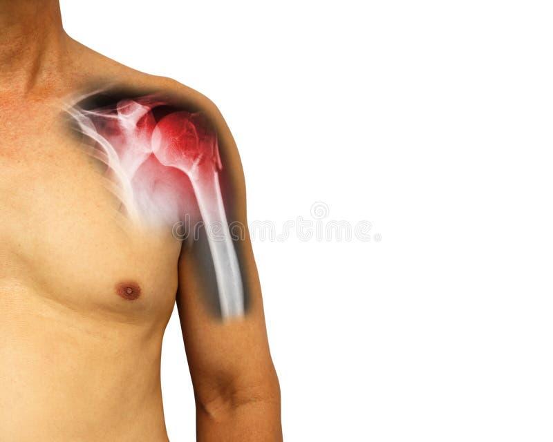 Mänsklig skuldra med röntgenstråleshowbrott på halsen av humerusarmbenet Isolerad bakgrund tomt område på rätsidan fotografering för bildbyråer