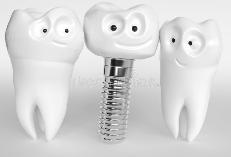Mänsklig tecknad filmimplantat för tand - tolkning 3D vektor illustrationer