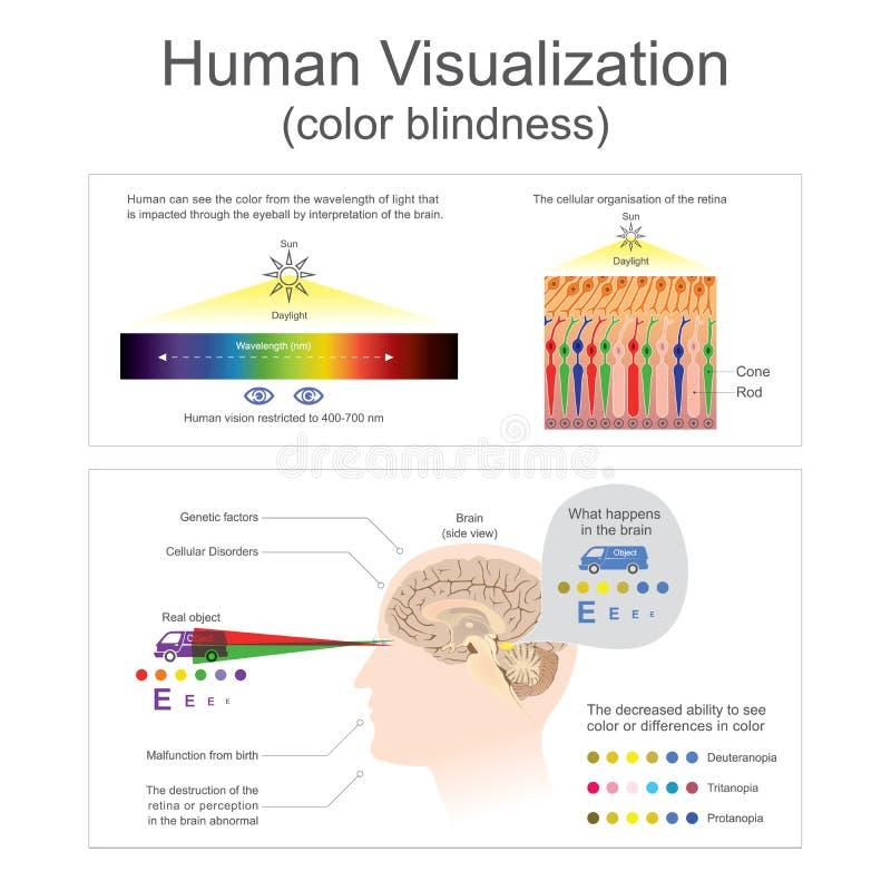 Mänsklig Visualizationfärgblindhet royaltyfri illustrationer