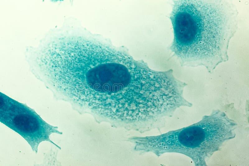 Mänskliga cancerceller för prostata PC-3 royaltyfria foton