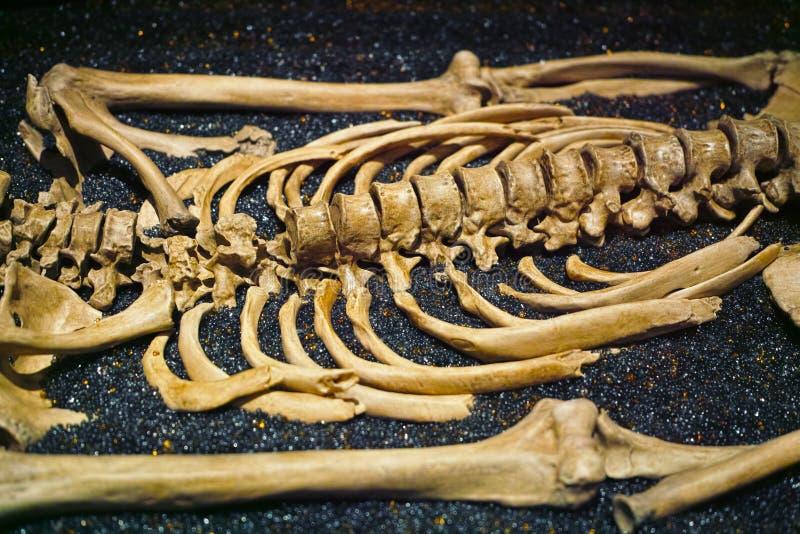 Mänskliga skelettben royaltyfria bilder