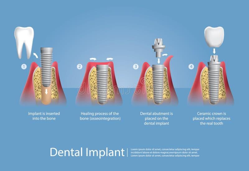 Mänskliga tänder och tand- implantat royaltyfri illustrationer